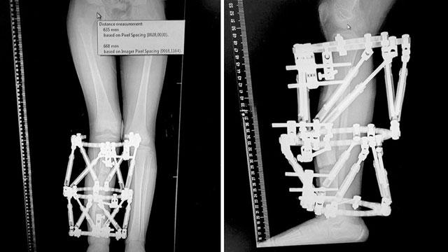 Рентгенограмма ног пациентов