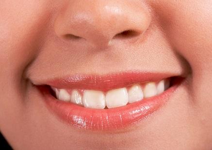 реконструкция губ и языка в Израиле