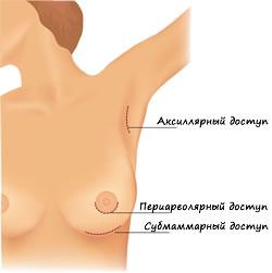 Коррекция груди в Израиле